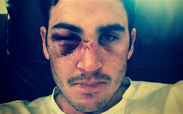 Craig Kieswetter retires from international cricket following eye injury